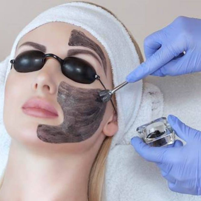carbon peel facial treatment clinic aesthetics knutsford cheshire laser